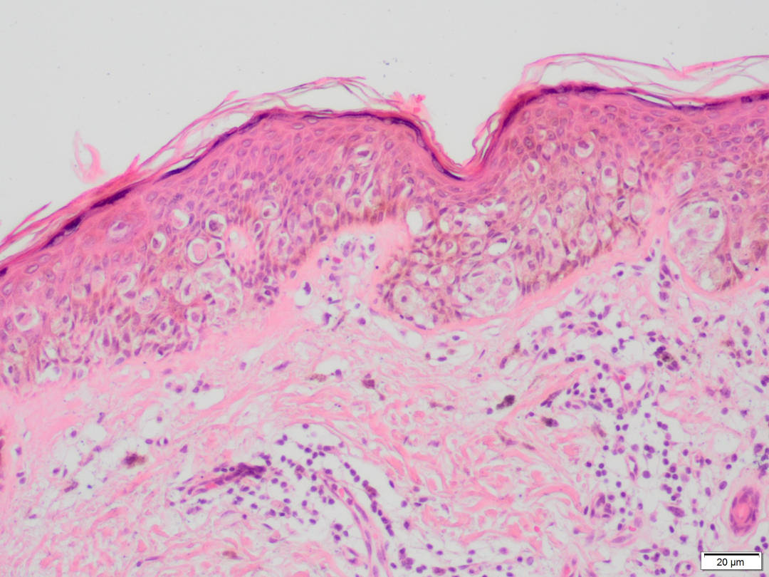 DERMATOPATHOLOGY.